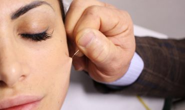 The latest facelift trend is based on acupuncture