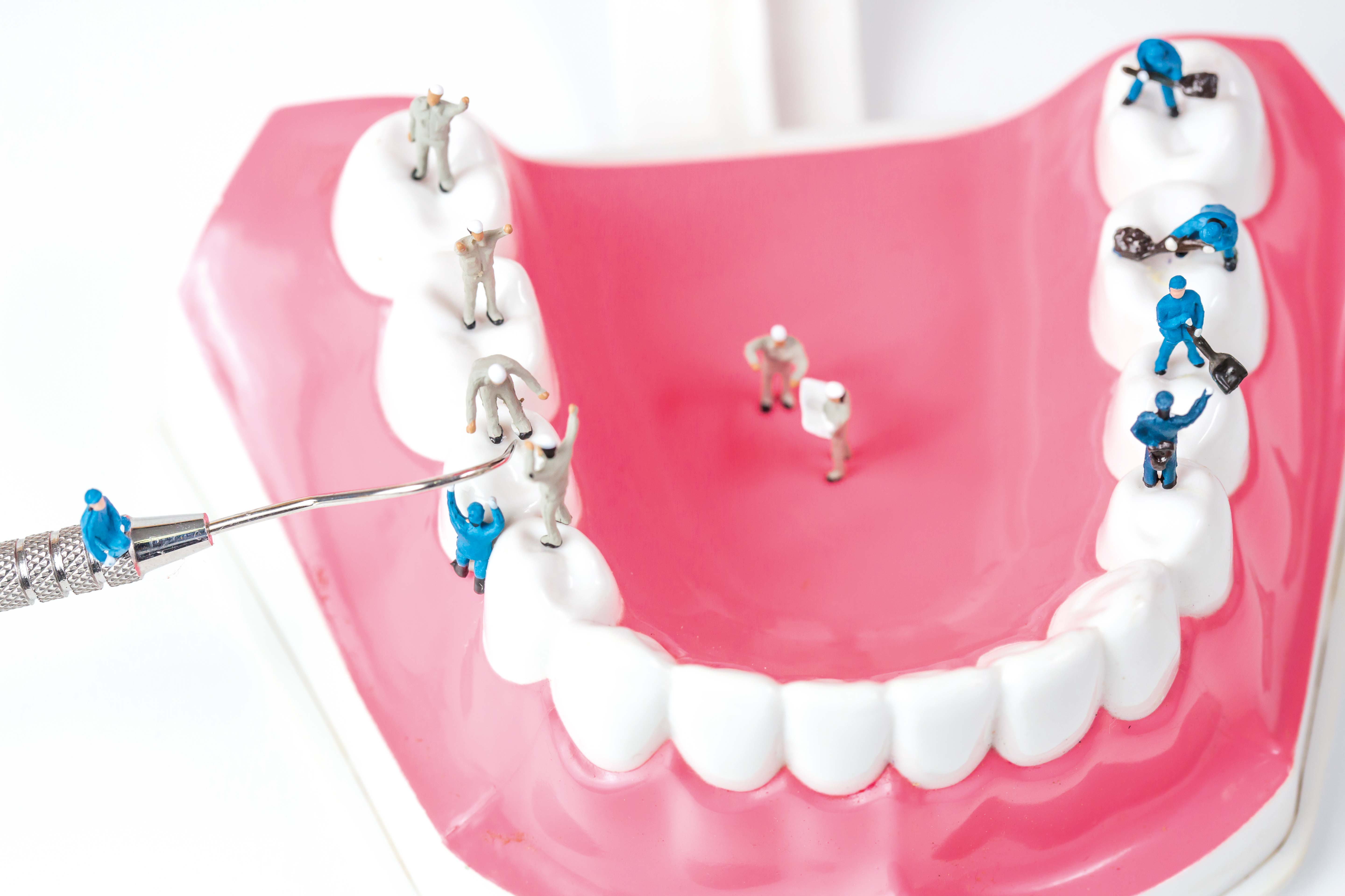 Methods: How to get white teeth