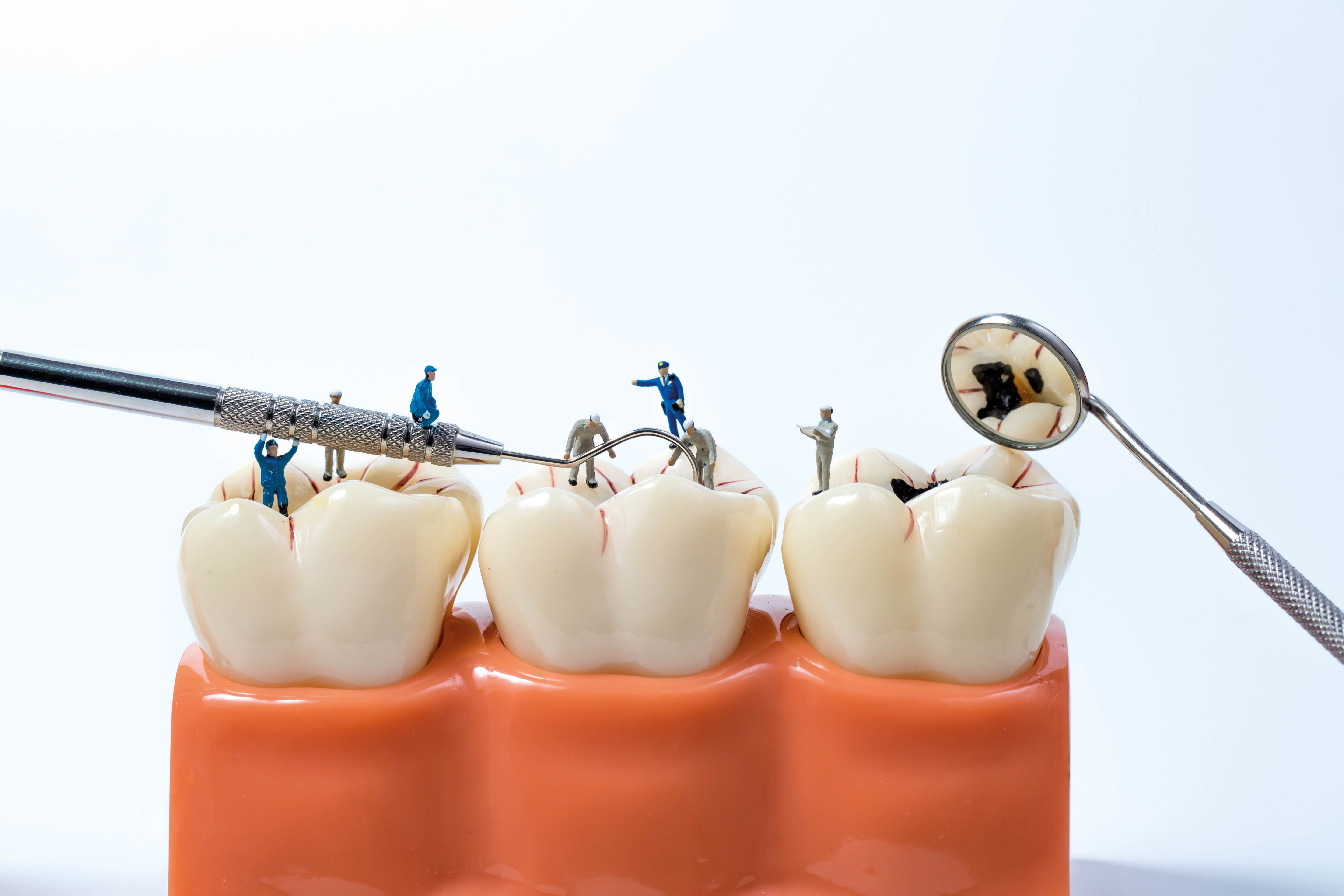 Methods: How to get that white teeth